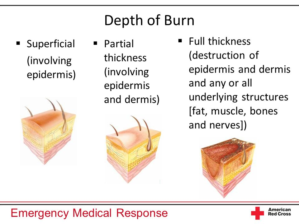 Depth of Burn Full thickness (destruction of epidermis and dermis and any or all underlying structures [fat, muscle, bones and nerves])